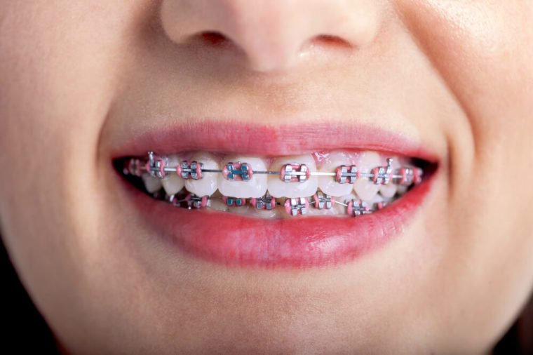 Maintenance tips to make life easier with braces